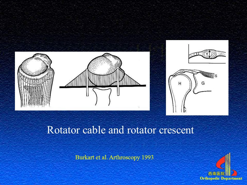 Orthopedic Department Rotator cable and rotator crescent Burkart et al. Arthroscopy 1993