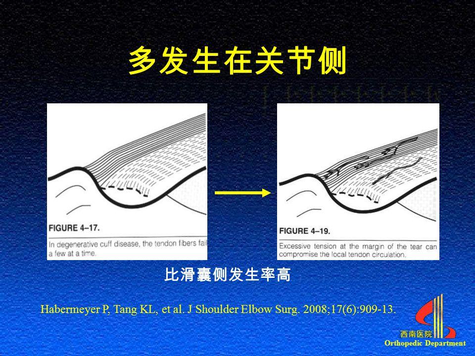 Orthopedic Department 多发生在关节侧 比滑囊侧发生率高 Habermeyer P, Tang KL, et al.