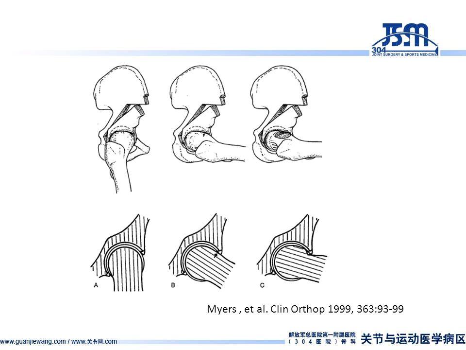 Myers, et al. Clin Orthop 1999, 363:93-99