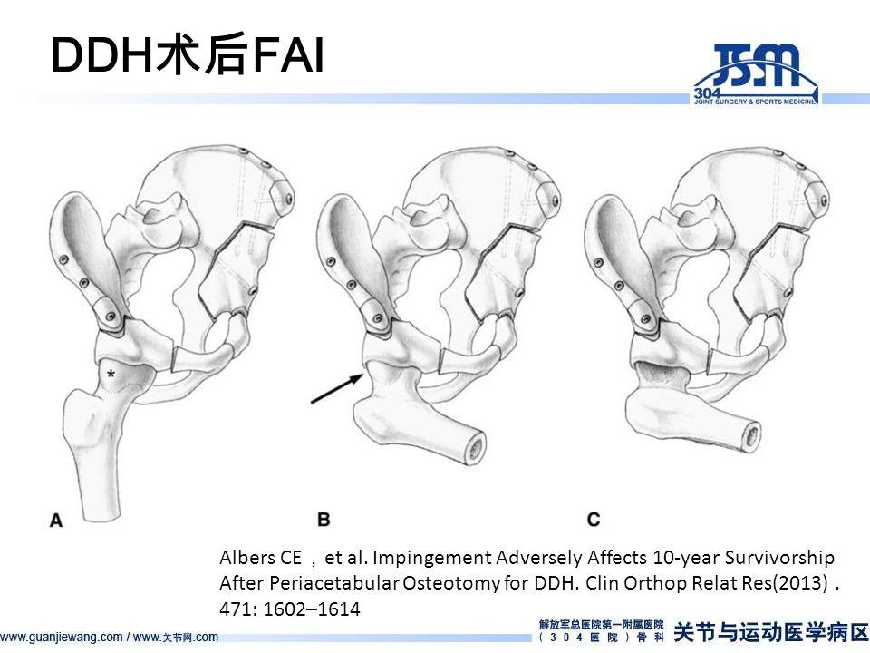 DDH 术后 FAI Albers CE , et al.