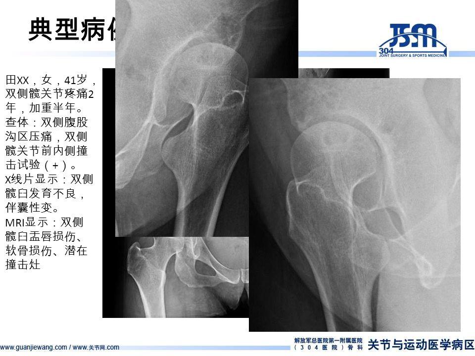 典型病例 — 病例 4 田 XX ,女, 41 岁, 双侧髋关节疼痛 2 年,加重半年。 查体:双侧腹股 沟区压痛,双侧 髋关节前内侧撞 击试验( + )。 X 线片显示:双侧 髋臼发育不良, 伴囊性变。 MRI 显示:双侧 髋臼盂唇损伤、 软骨损伤、潜在 撞击灶