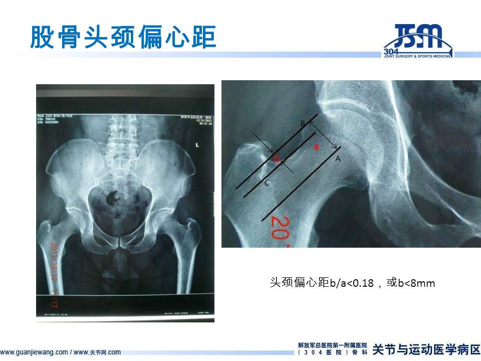 股骨头颈偏心距 头颈偏心距 b/a<0.18 ,或 b<8mm a b