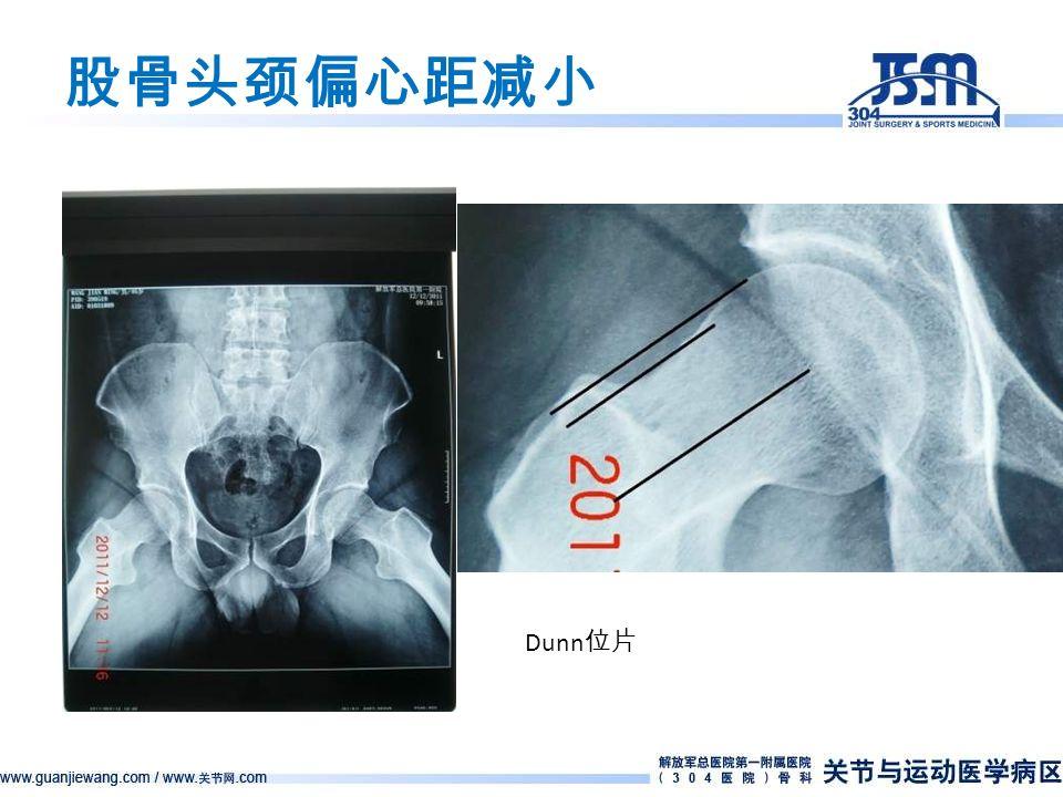 股骨头颈偏心距减小 Dunn 位片