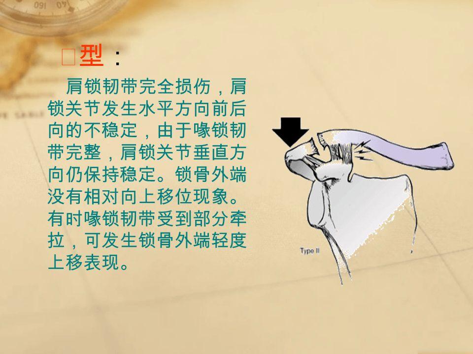 Ⅱ型:Ⅱ型: 肩锁韧带完全损伤,肩 锁关节发生水平方向前后 向的不稳定,由于喙锁韧 带完整,肩锁关节垂直方 向仍保持稳定。锁骨外端 没有相对向上移位现象。 有时喙锁韧带受到部分牵 拉,可发生锁骨外端轻度 上移表现。