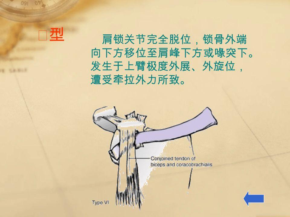 Ⅵ型Ⅵ型 肩锁关节完全脱位,锁骨外端 向下方移位至肩峰下方或喙突下。 发生于上臂极度外展、外旋位, 遭受牵拉外力所致。