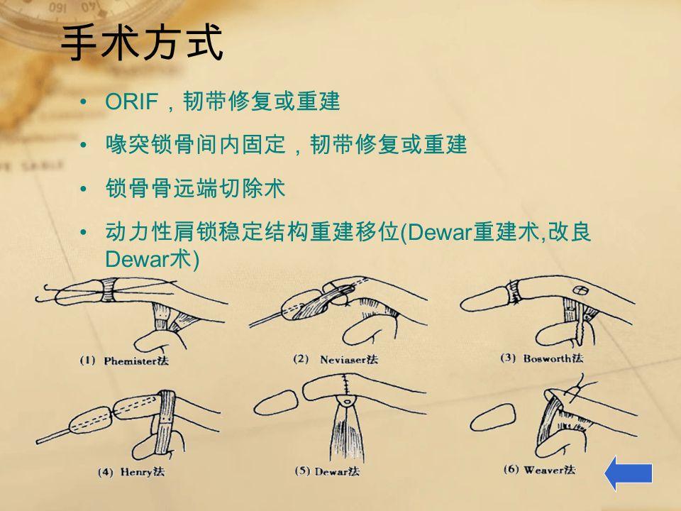 手术方式 ORIF ,韧带修复或重建 喙突锁骨间内固定,韧带修复或重建 锁骨骨远端切除术 动力性肩锁稳定结构重建移位 (Dewar 重建术, 改良 Dewar 术 )