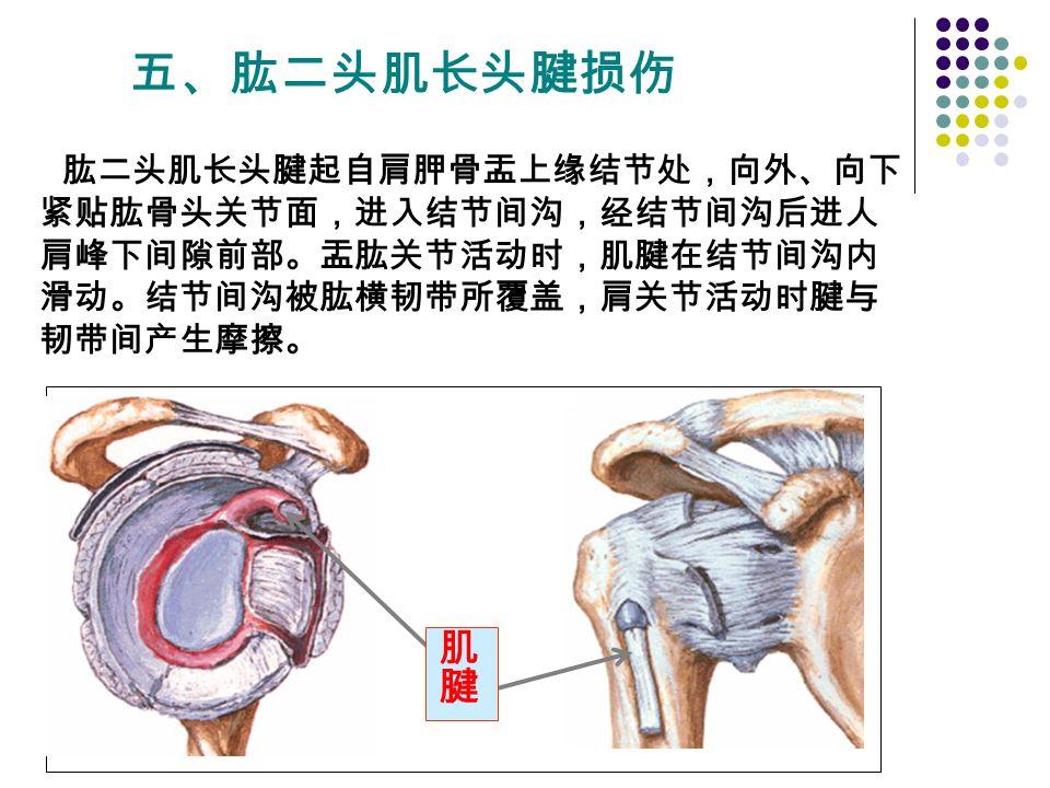 五、肱二头肌长头腱损伤 肱二头肌长头腱起自肩胛骨盂上缘结节处,向外、向下 紧贴肱骨头关节面,进入结节间沟,经结节间沟后进人 肩峰下间隙前部。盂肱关节活动时,肌腱在结节间沟内 滑动。结节间沟被肱横韧带所覆盖,肩关节活动时腱与 韧带间产生摩擦。
