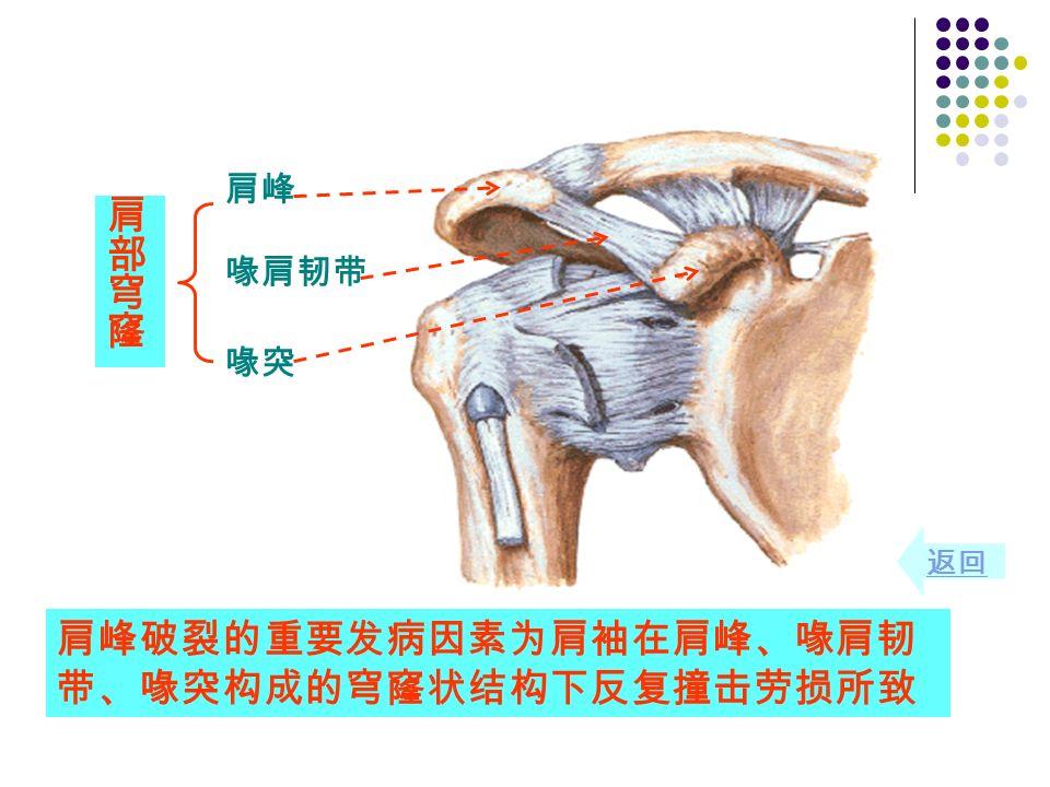 肩峰破裂的重要发病因素为肩袖在肩峰、喙肩韧 带、喙突构成的穹窿状结构下反复撞击劳损所致 肩峰 喙突 喙肩韧带 返回