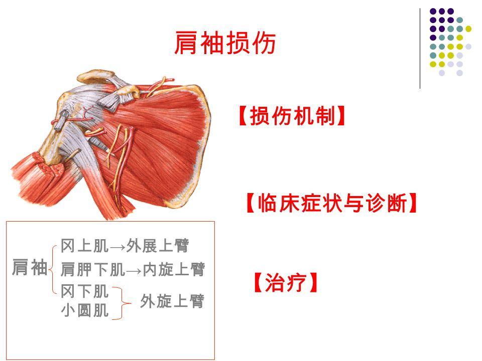 肩袖损伤 【损伤机制】 【临床症状与诊断】 【治疗】 肩袖 冈上肌 → 外展上臂 肩胛下肌 → 内旋上臂 冈下肌 小圆肌 外旋上臂