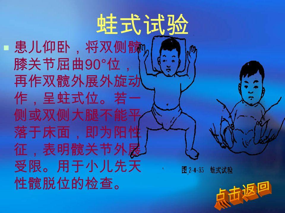 蛙式试验  患儿仰卧,将双侧髋 膝关节屈曲 90° 位, 再作双髋外展外旋动 作,呈蛀式位。若一 侧或双侧大腿不能平 落于床面,即为阳性 征,表明髋关节外展 受限。用于小儿先天 性髋脱位的检查。