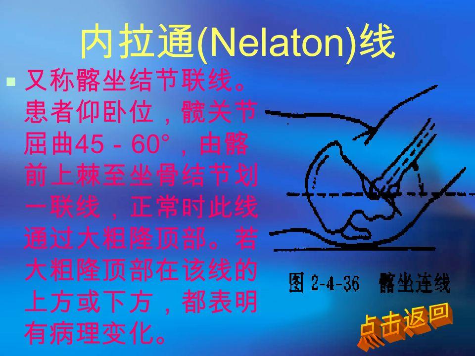 内拉通 (Nelaton) 线  又称髂坐结节联线。 患者仰卧位,髋关节 屈曲 45 - 60° ,由髂 前上棘至坐骨结节划 一联线,正常时此线 通过大粗隆顶部。若 大粗隆顶部在该线的 上方或下方,都表明 有病理变化。