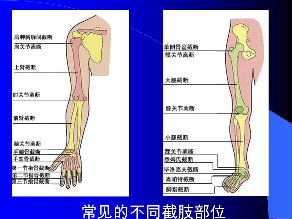 常见的不同截肢部位