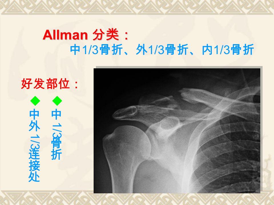 Allman 分类: 中 1/3 骨折、外 1/3 骨折、内 1/3 骨折 好发部位: