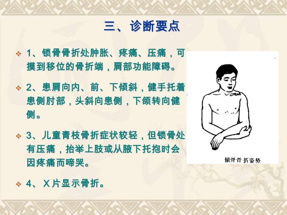 三、诊断要点  1 、锁骨骨折处肿胀、疼痛、压痛,可 摸到移位的骨折端,肩部功能障碍。  2 、患肩向内、前、下倾斜,健手托着 患侧肘部,头斜向患侧,下颌转向健 侧。  3 、儿童青枝骨折症状较轻,但锁骨处 有压痛,抬举上肢或从腋下托抱时会 因疼痛而啼哭。  4 、X片显示骨折。