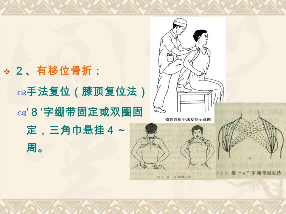  2、有移位骨折:  手法复位(膝顶复位法)  ' 8 ' 字绷带固定或双圈固 定,三角巾悬挂4~5 周。