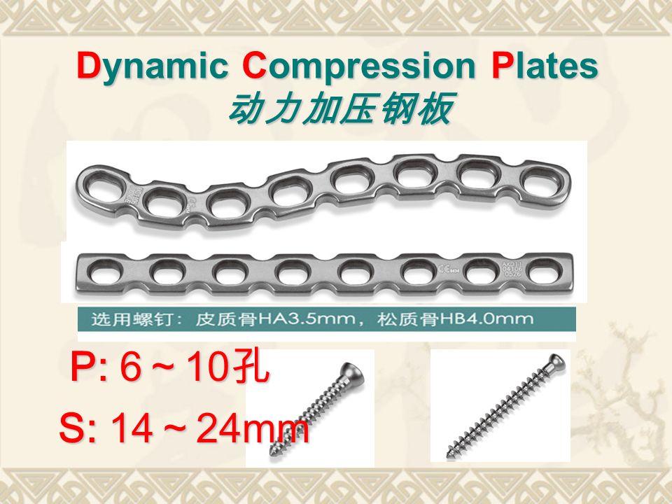 Dynamic Compression Plates 动力加压钢板 P: 6 ~ 10 孔 S: 14 ~ 24mm