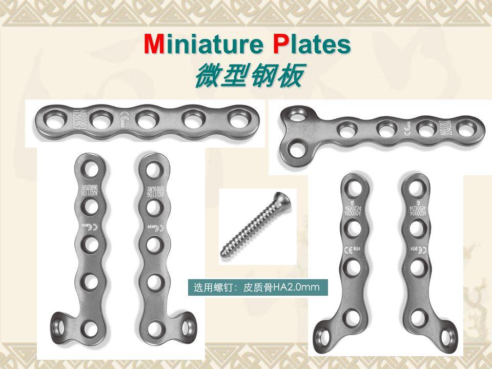 Miniature Plates 微型钢板
