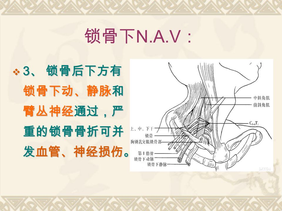 锁骨下 N.A.V :  3 、 锁骨后下方有 锁骨下动、静脉和 臂丛神经通过,严 重的锁骨骨折可并 发血管、神经损伤。