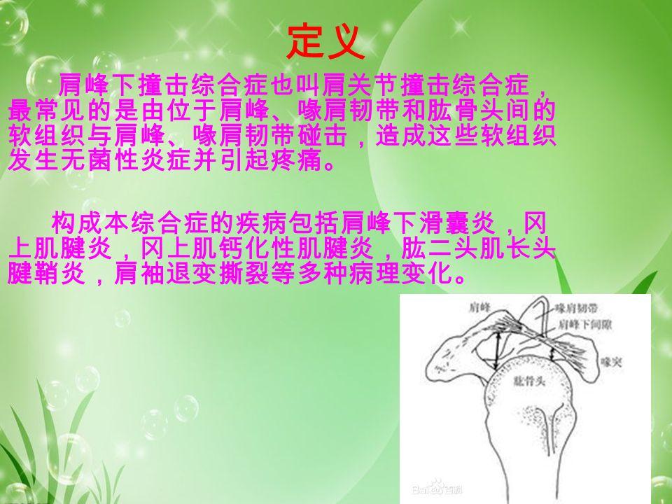 定义 肩峰下撞击综合症也叫肩关节撞击综合症, 最常见的是由位于肩峰、喙肩韧带和肱骨头间的 软组织与肩峰、喙肩韧带碰击,造成这些软组织 发生无菌性炎症并引起疼痛。 构成本综合症的疾病包括肩峰下滑囊炎,冈 上肌腱炎,冈上肌钙化性肌腱炎,肱二头肌长头 腱鞘炎,肩袖退变撕裂等多种病理变化。