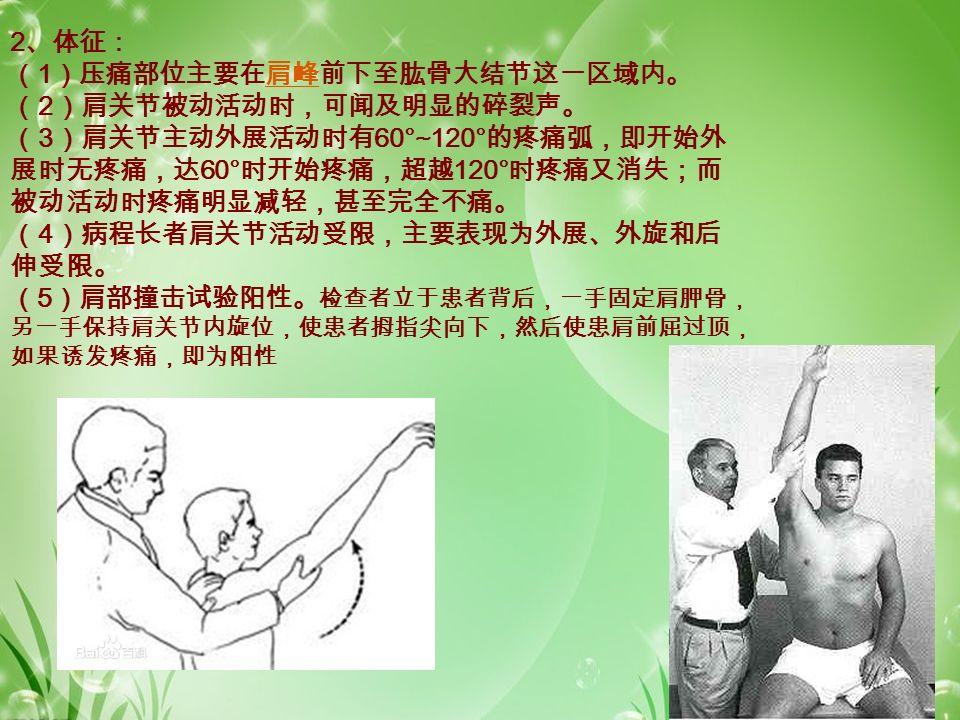 2 、体征: ( 1 )压痛部位主要在肩峰前下至肱骨大结节这一区域内。肩峰 ( 2 )肩关节被动活动时,可闻及明显的碎裂声。 ( 3 )肩关节主动外展活动时有 60°~120° 的疼痛弧,即开始外 展时无疼痛,达 60° 时开始疼痛,超越 120° 时疼痛又消失;而 被动活动时疼痛明显减轻,甚至完全不痛。 ( 4 )病程长者肩关节活动受限,主要表现为外展、外旋和后 伸受限。 ( 5 )肩部撞击试验阳性。 检查者立于患者背后,一手固定肩胛骨, 另一手保持肩关节内旋位,使患者拇指尖向下,然后使患肩前屈过顶, 如果诱发疼痛,即为阳性