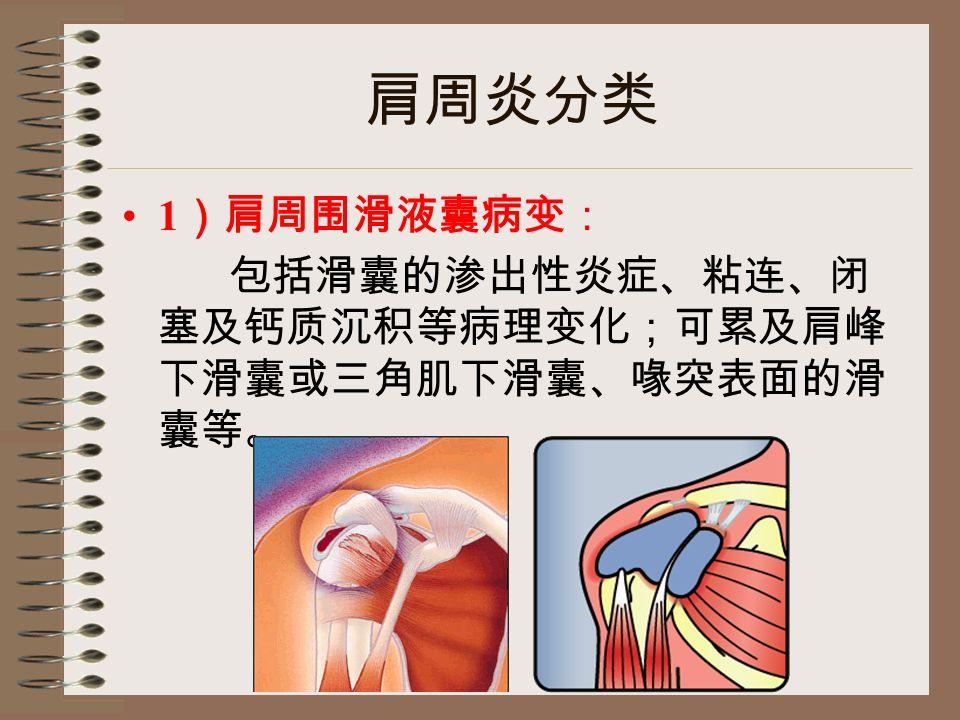 肩周炎分类 1 )肩周围滑液囊病变: 包括滑囊的渗出性炎症、粘连、闭 塞及钙质沉积等病理变化;可累及肩峰 下滑囊或三角肌下滑囊、喙突表面的滑 囊等。