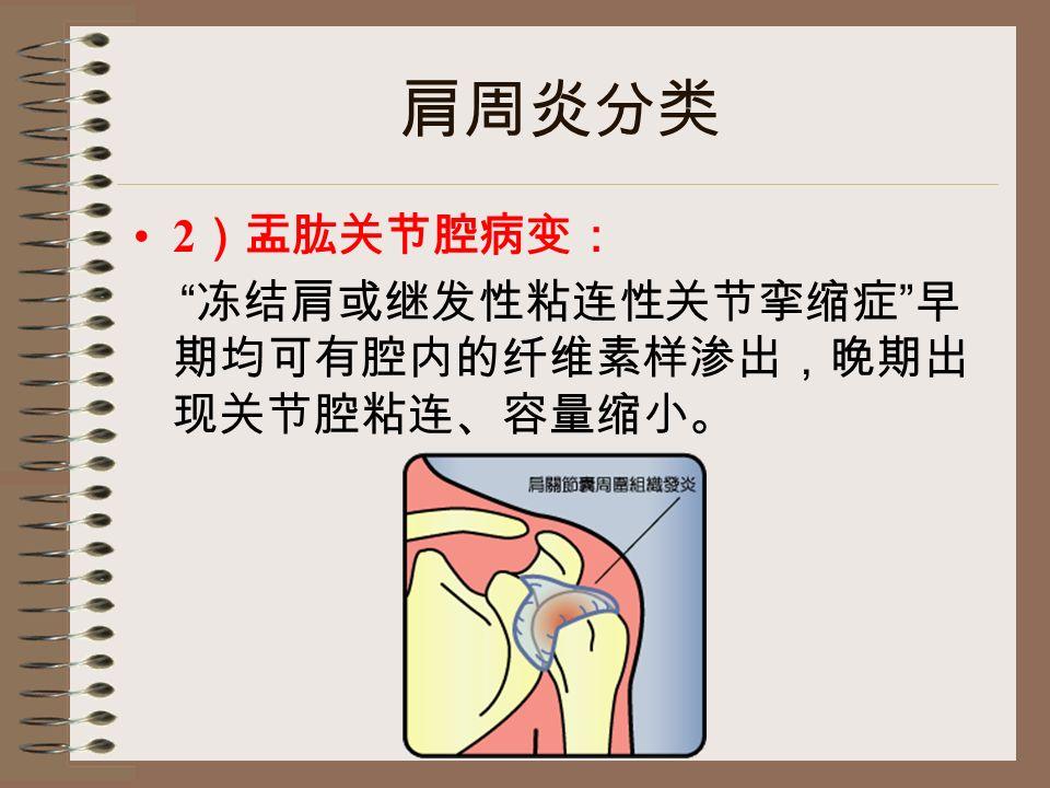 肩周炎分类 2 )盂肱关节腔病变: 冻结肩或继发性粘连性关节挛缩症 早 期均可有腔内的纤维素样渗出,晚期出 现关节腔粘连、容量缩小。