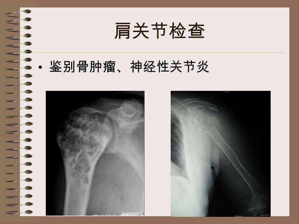 肩关节检查 鉴别骨肿瘤、神经性关节炎