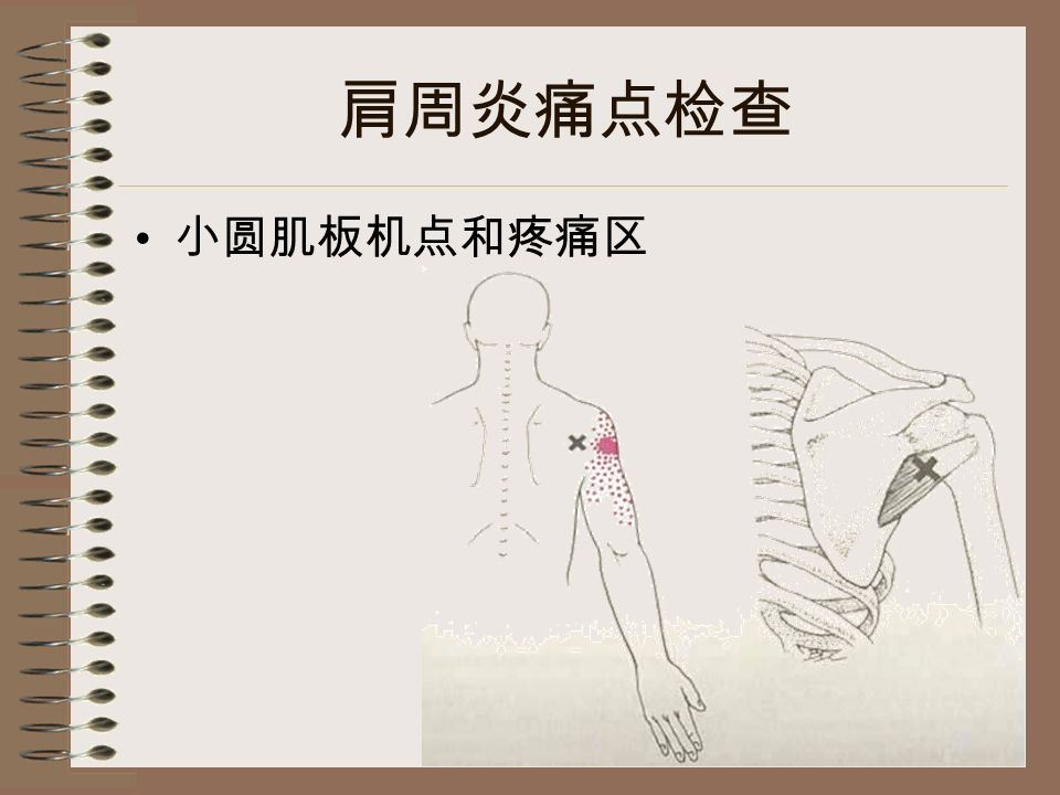 肩周炎痛点检查 小圆肌板机点和疼痛区