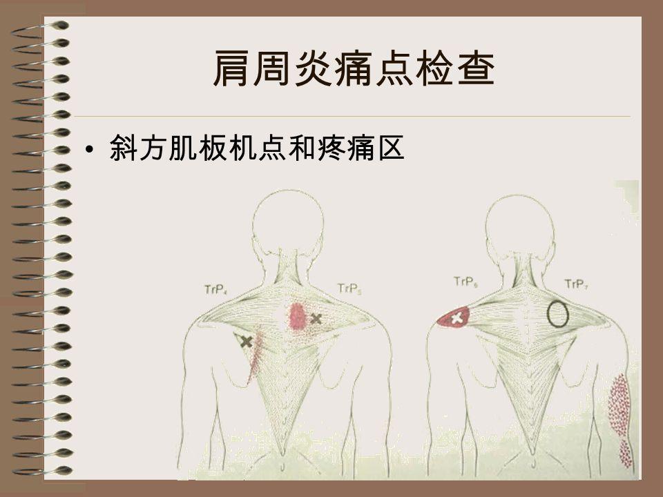 肩周炎痛点检查 斜方肌板机点和疼痛区