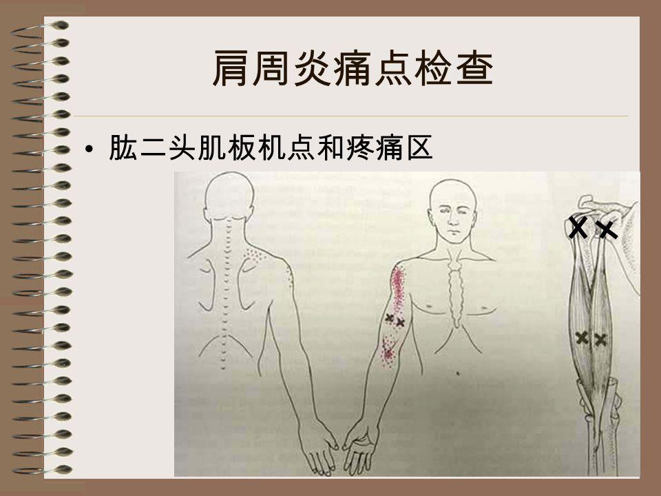肩周炎痛点检查 肱二头肌板机点和疼痛区