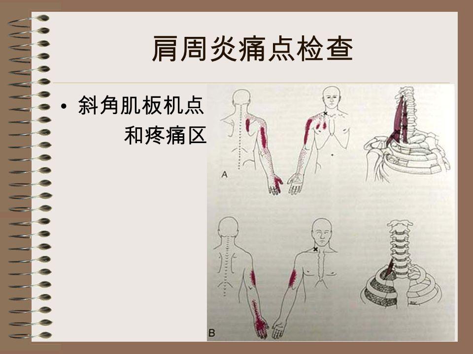 肩周炎痛点检查 斜角肌板机点 和疼痛区