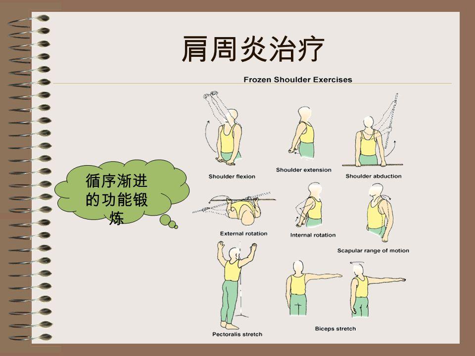 肩周炎治疗 循序渐进 的功能锻 炼