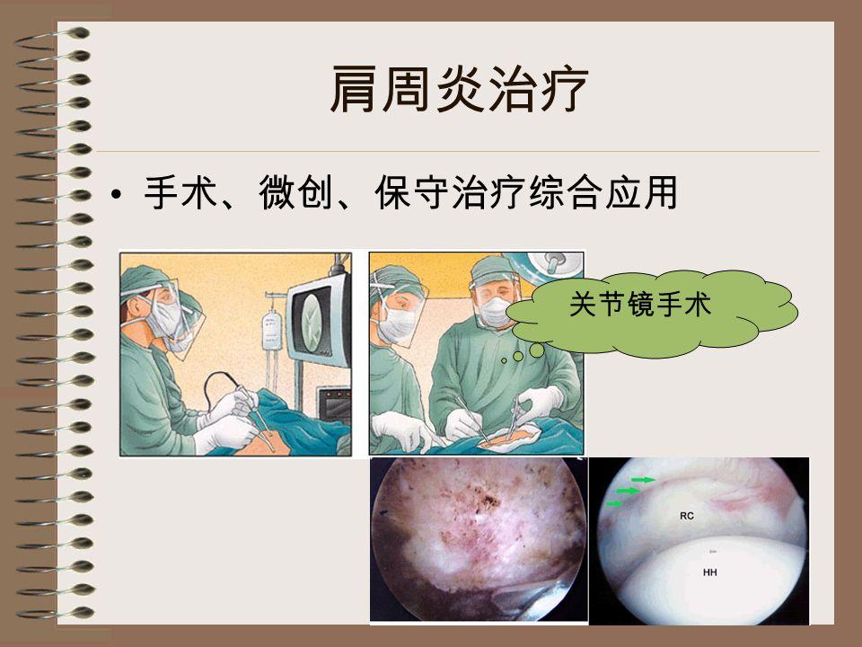 肩周炎治疗 手术、微创、保守治疗综合应用 关节镜手术