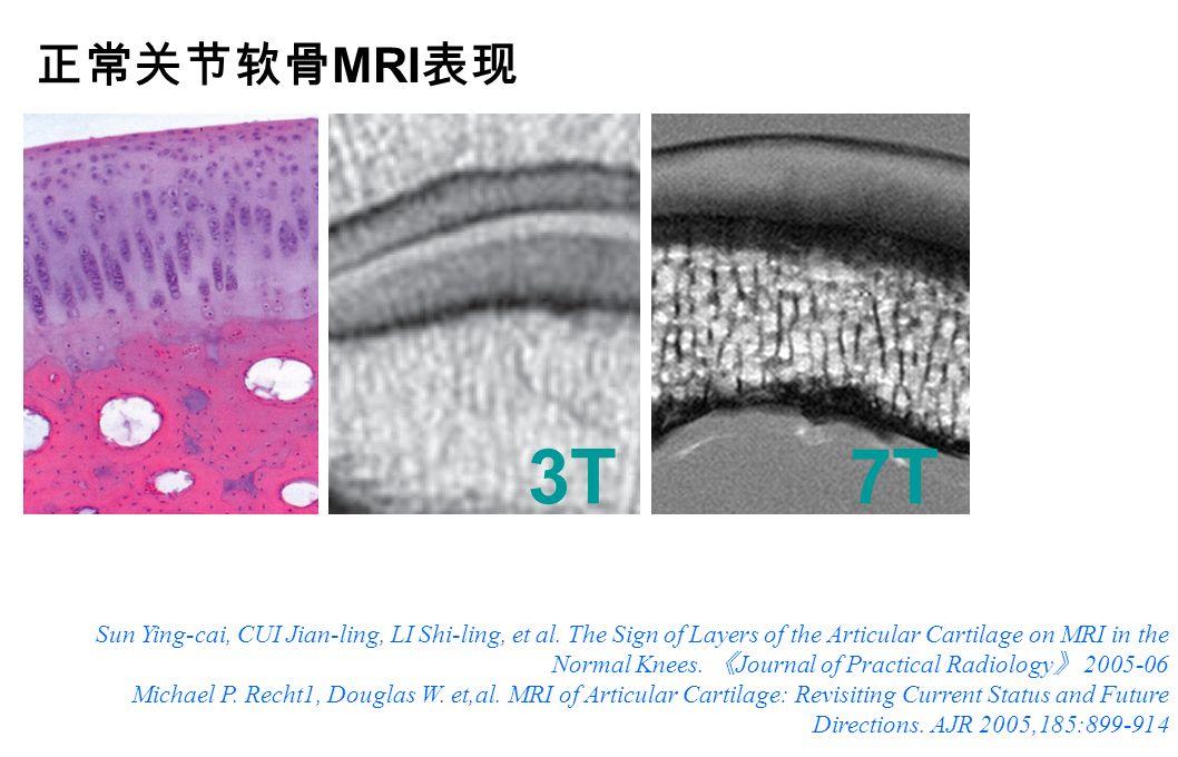 3T7T 关节软骨 MRI 分层:通常 3 层,部分 1-5 层。 Sun Ying-cai, CUI Jian-ling, LI Shi-ling, et al.