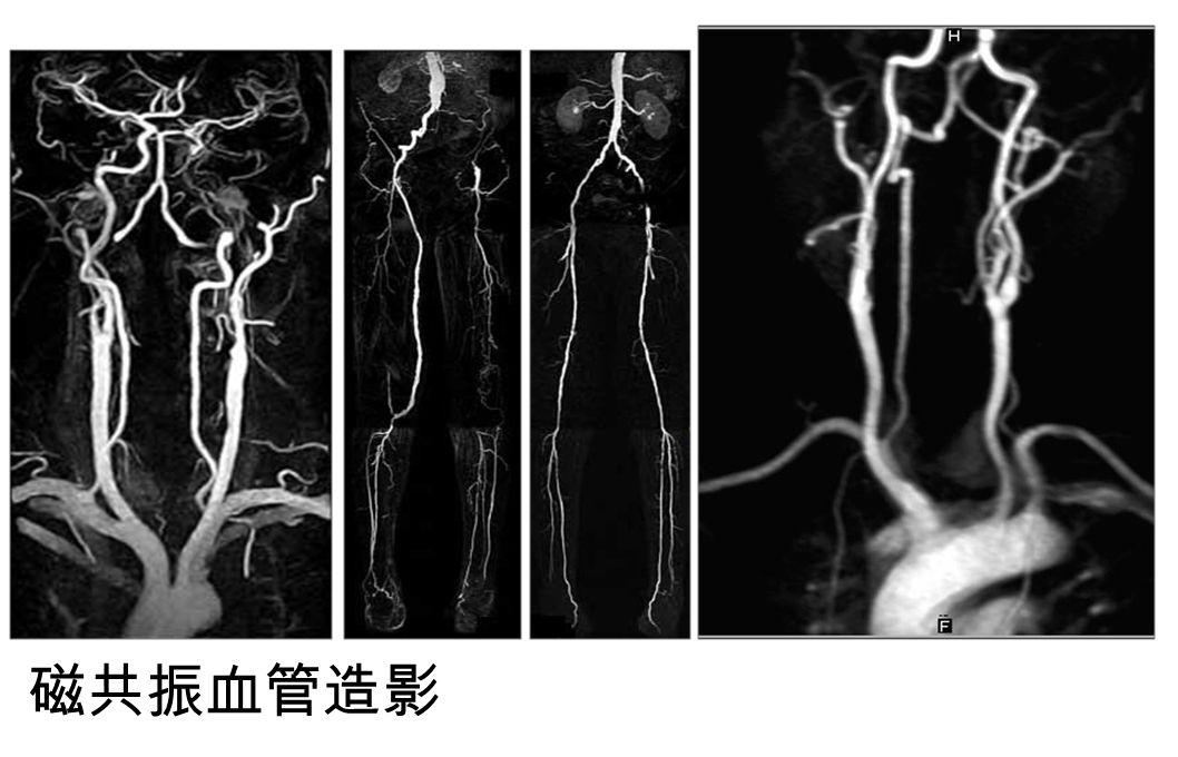 磁共振血管造影