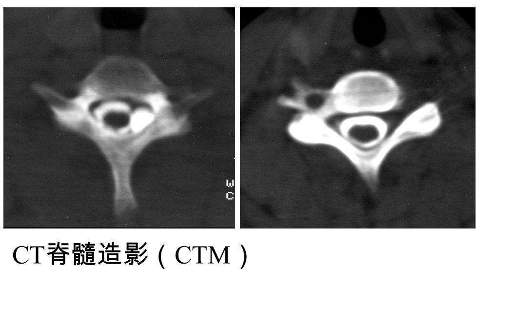 CT 脊髓造影( CTM )