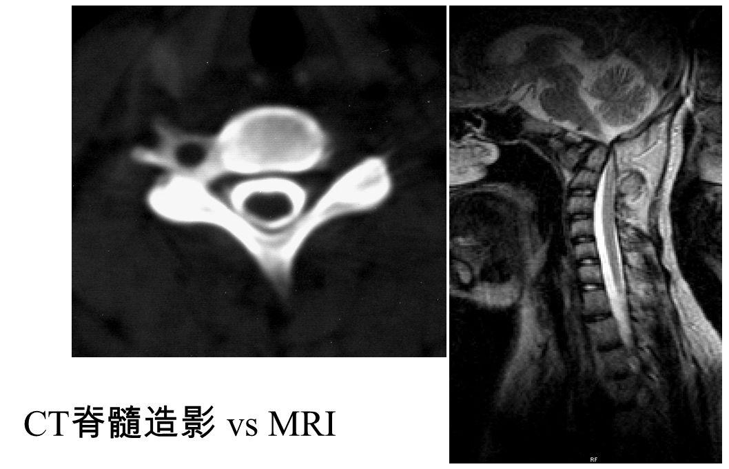 CT 脊髓造影 vs MRI
