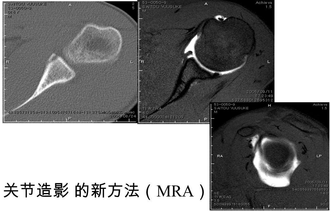 关节造影 的新方法( MRA )