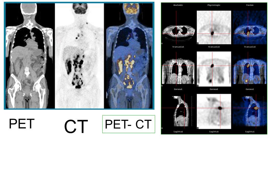 PET PET- CT CT