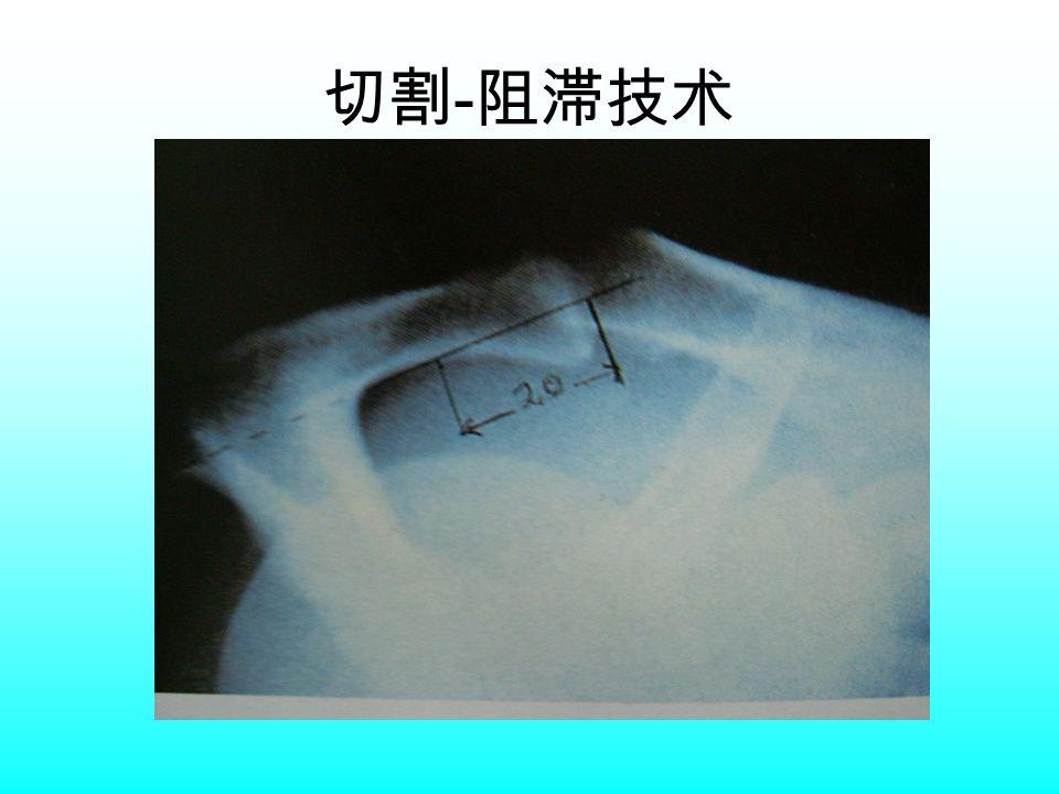 切割 - 阻滞技术