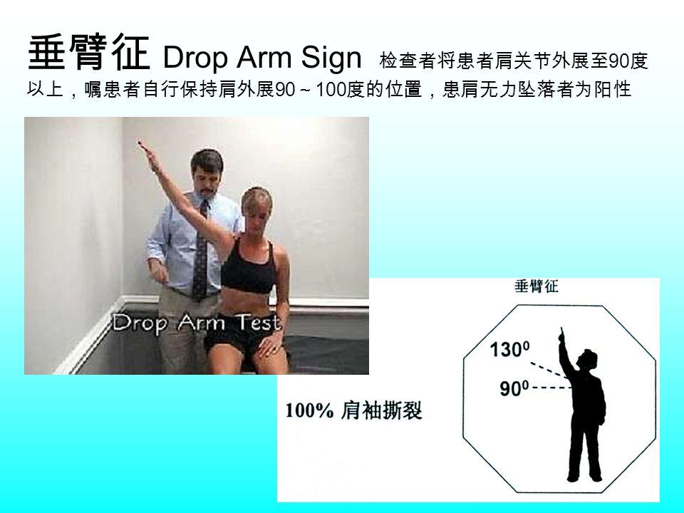 垂臂征 Drop Arm Sign 检查者将患者肩关节外展至 90 度 以上,嘱患者自行保持肩外展 90 ~ 100 度的位置,患肩无力坠落者为阳性