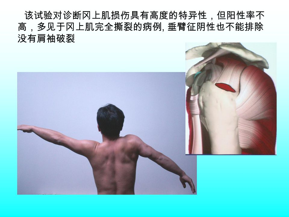 该试验对诊断冈上肌损伤具有高度的特异性,但阳性率不 高,多见于冈上肌完全撕裂的病例, 垂臂征阴性也不能排除 没有肩袖破裂