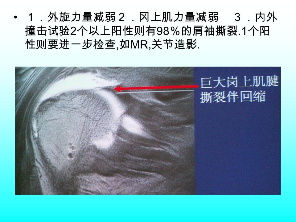 1.外旋力量减弱2.冈上肌力量减弱 3.内外 撞击试验 2 个以上阳性则有 98 %的肩袖撕裂.1 个阳 性则要进一步检查, 如 MR, 关节造影.