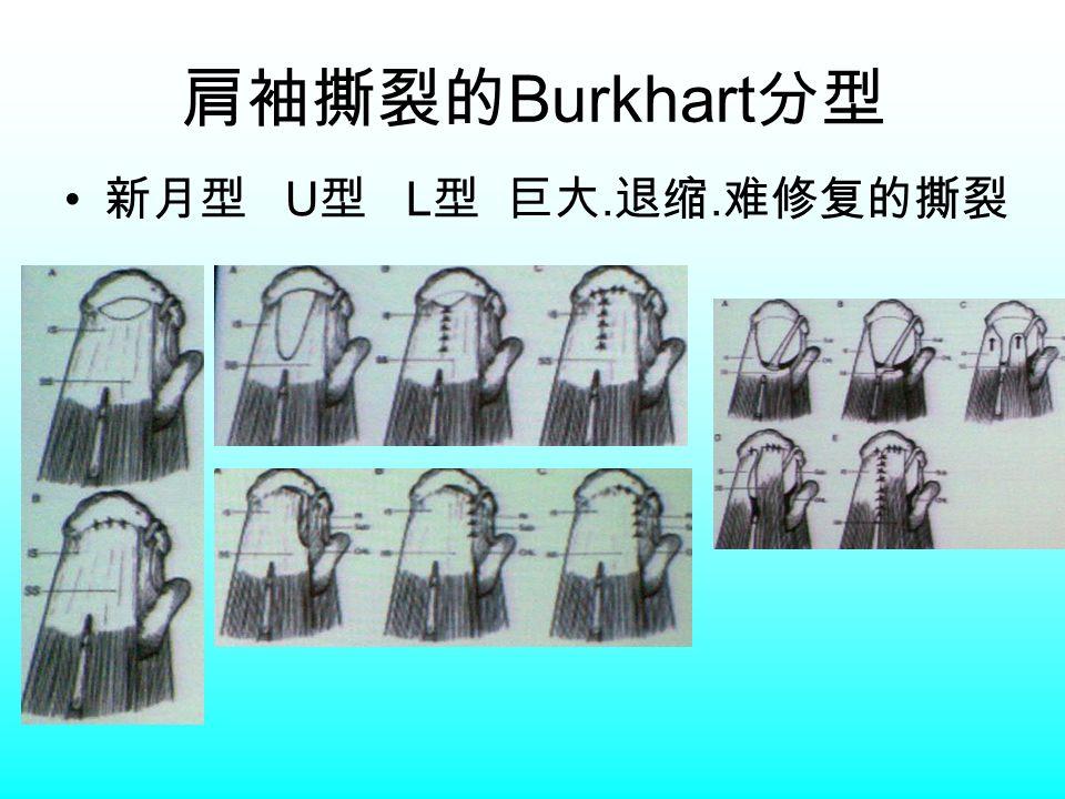 肩袖撕裂的 Burkhart 分型 新月型 U 型 L 型 巨大. 退缩. 难修复的撕裂