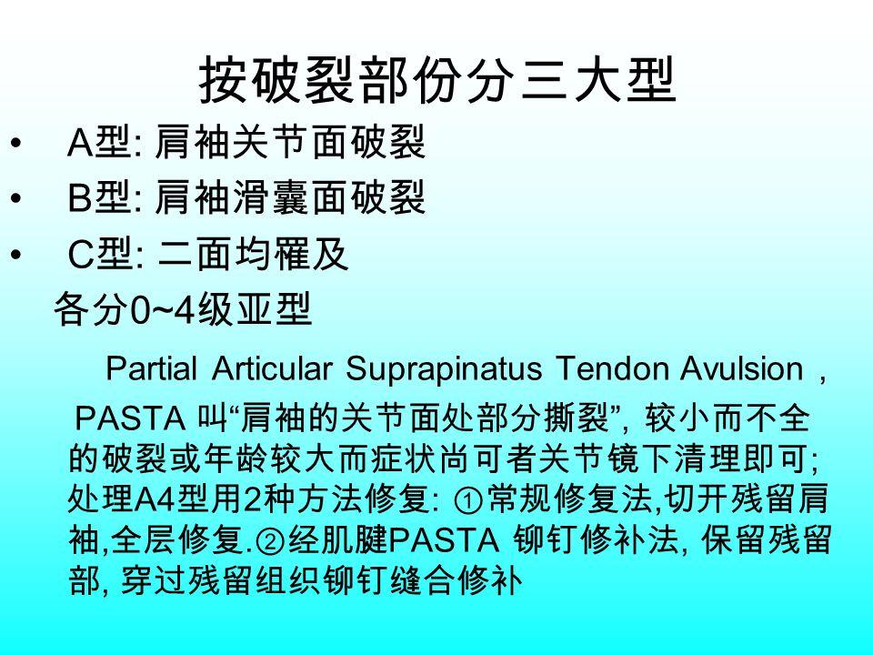 按破裂部份分三大型 A 型 : 肩袖关节面破裂 B 型 : 肩袖滑囊面破裂 C 型 : 二面均罹及 各分 0~4 级亚型 Partial Articular Suprapinatus Tendon Avulsion, PASTA 叫 肩袖的关节面处部分撕裂 , 较小而不全 的破裂或年龄较大而症状尚可者关节镜下清理即可 ; 处理 A4 型用 2 种方法修复 : ①常规修复法, 切开残留肩 袖, 全层修复.