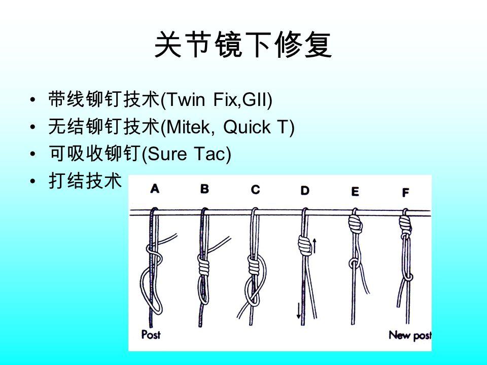 关节镜下修复 带线铆钉技术 (Twin Fix,GII) 无结铆钉技术 (Mitek, Quick T) 可吸收铆钉 (Sure Tac) 打结技术