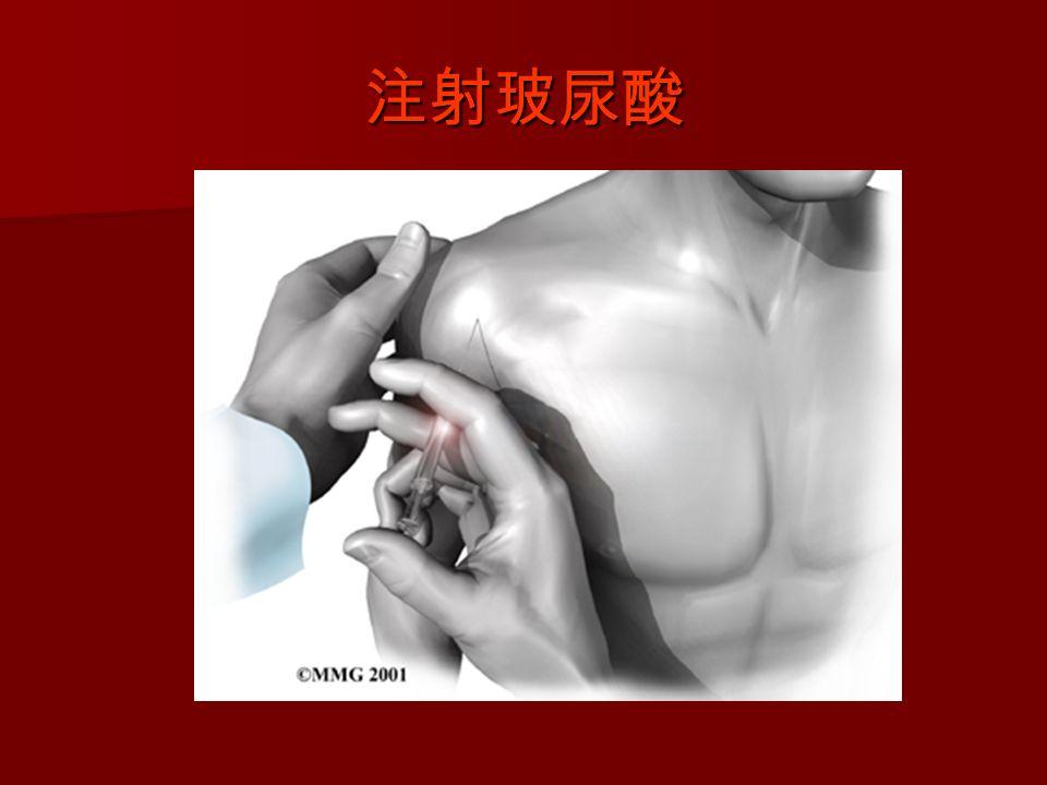 注射玻尿酸