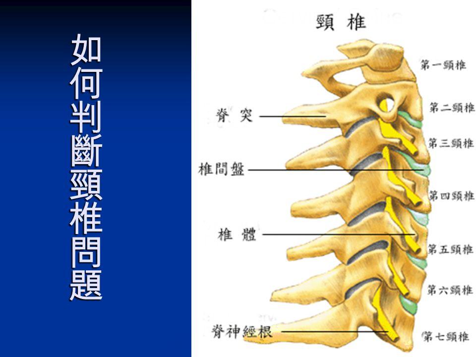 頸椎七節的八對神經,影響到 五官、頸、肩、肘、手及腦神經 C 1 │ 頭痛、失眠、高血壓、倦怠、眼睛酸脹、記憶力衰 退、焦燥不安、發燒。 C 1 │ 頭痛、失眠、高血壓、倦怠、眼睛酸脹、記憶力衰 退、焦燥不安、發燒。 C 2 │ 頭暈、頭重、頭痛、眼疾、偏頭痛、顏面神經痛。 C 2 │ 頭暈、頭重、頭痛、眼疾、偏頭痛、顏面神經痛。 C 3 │ 頸部兩側僵硬酸痛、咳嗽、夜眠差、三叉神經痛。 C 3 │ 頸部兩側僵硬酸痛、咳嗽、夜眠差、三叉神經痛。 C 4 │ 肩膀僵硬酸痛、打噴嚏、喉嚨積痰、鼻病。 C 4 │ 肩膀僵硬酸痛、打噴嚏、喉嚨積痰、鼻病。 C 5 │ 上臂外側無力、酸麻脹痛、扁桃腺發炎。 C 5 │ 上臂外側無力、酸麻脹痛、扁桃腺發炎。 C 6 │ 前臂外側、姆指、食指無力、酸麻脹痛、手腕痛。 C 6 │ 前臂外側、姆指、食指無力、酸麻脹痛、手腕痛。 C 7 │ 前臂外側、中指、無名指無力、酸麻脹痛。 C 7 │ 前臂外側、中指、無名指無力、酸麻脹痛。 C 8 │ 前臂内側、小指無力、酸麻脹痛、氣管炎。 C 8 │ 前臂内側、小指無力、酸麻脹痛、氣管炎。