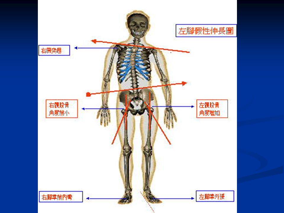 2. 身體向前彎曲, 看背肌是否一 高一低、骨骼 是否歪斜。