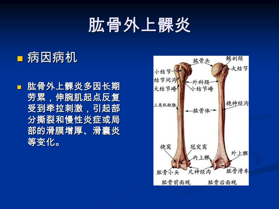 肱骨外上髁炎 病因病机 病因病机 肱骨外上髁炎多因长期 劳累,伸腕肌起点反复 受到牵拉刺激,引起部 分撕裂和慢性炎症或局 部的滑膜增厚、滑囊炎 等变化。 肱骨外上髁炎多因长期 劳累,伸腕肌起点反复 受到牵拉刺激,引起部 分撕裂和慢性炎症或局 部的滑膜增厚、滑囊炎 等变化。